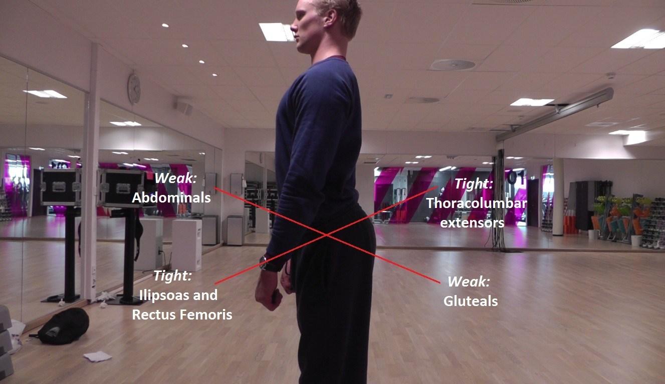 Lower Crossed Posture