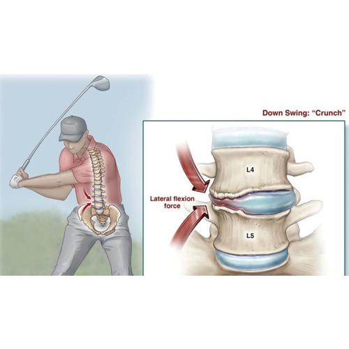 golf pain